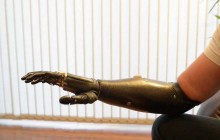 'Terminator' arm is world's most advanced prosthetic limb